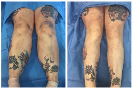 proceso cirugia de lipedema en piernas